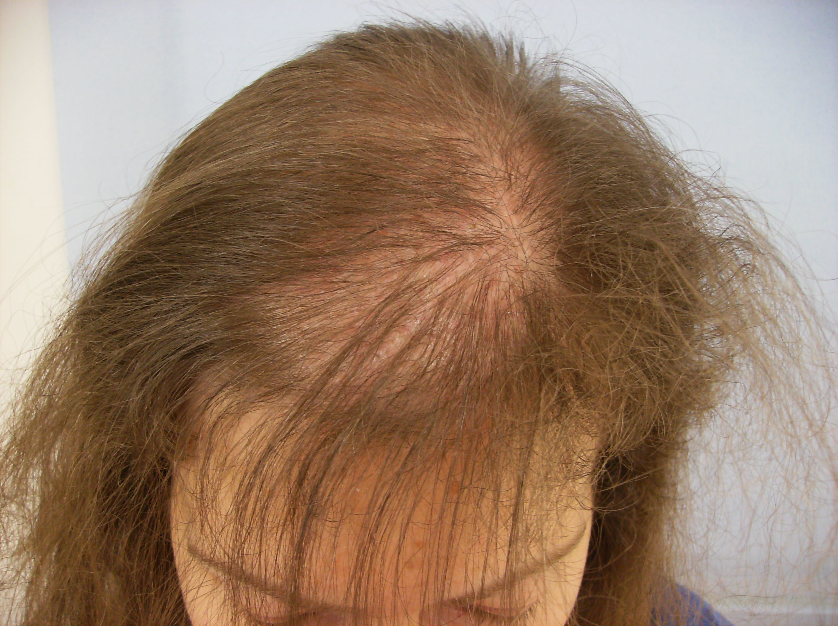 pictures of alopecia #10