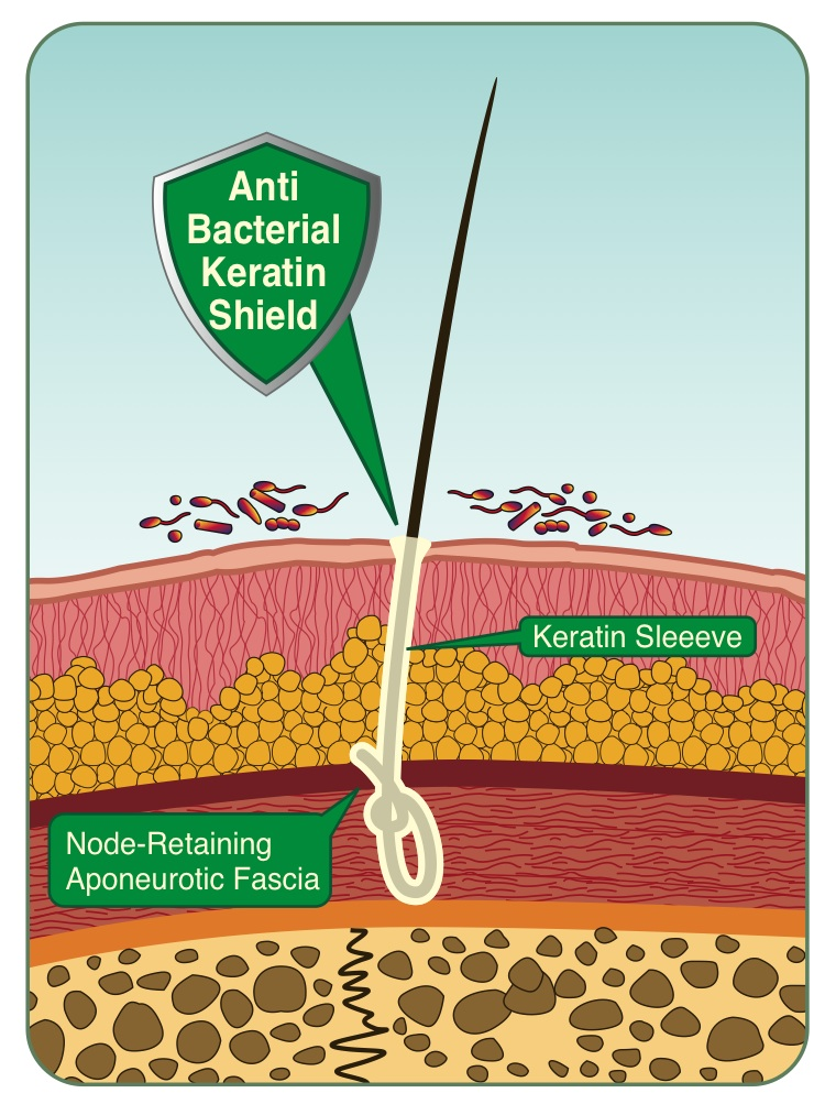 Biofibre Artificial Hair Medicap
