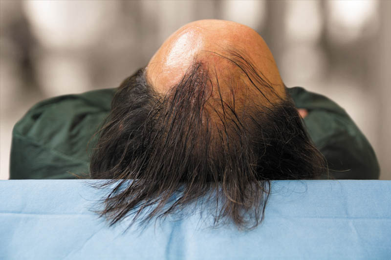 Hair Transplant And Hair Implant The Differences Medicap