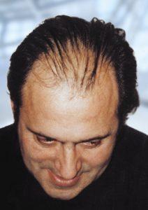 Les Resultats De L Implantation De Cheveux Artificiels Medicap