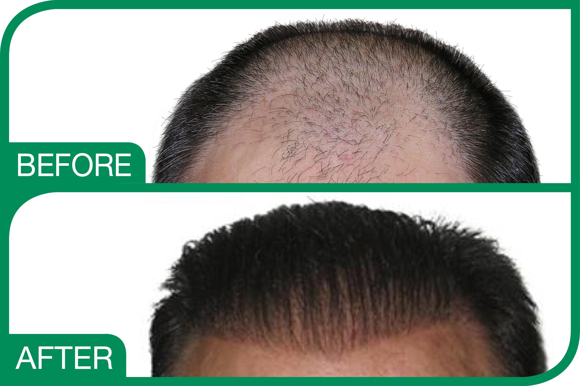 Hair Implant Sure Baldness Solution Medicap