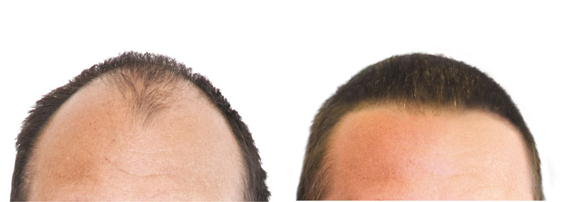 Hair Implant Pictures Of Results Medicap