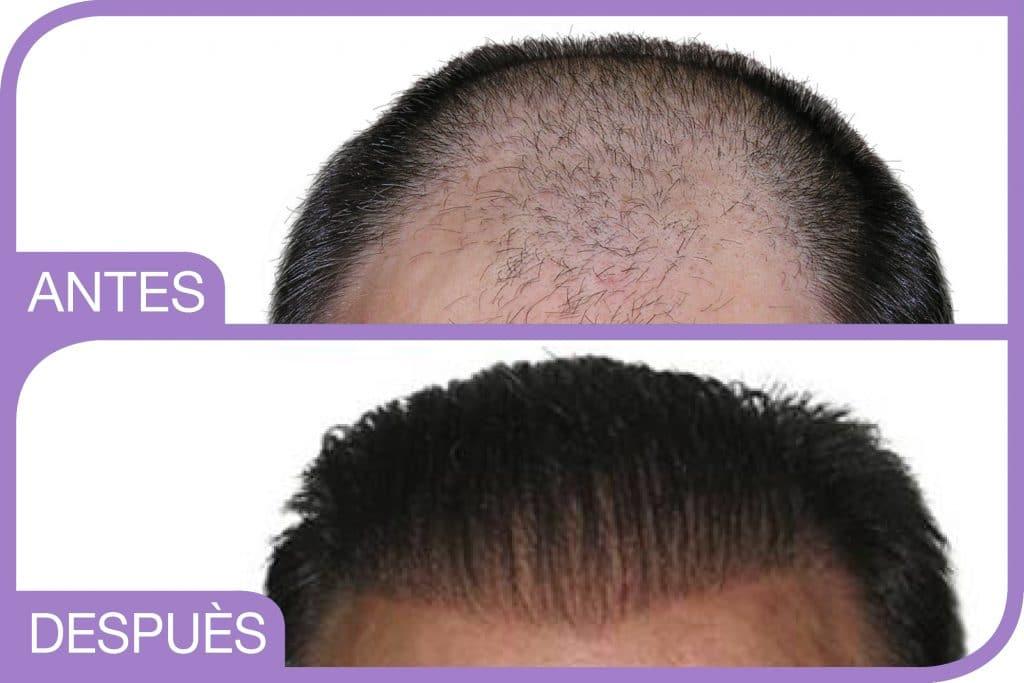 prima e dopo impianto capelli